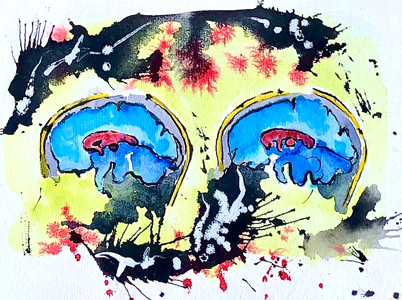 Drawing of two blue brains side by side with yellow, black, and red background